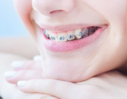 closeup of woman with braces
