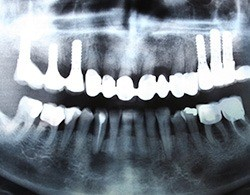 X-ray of implant supported denture