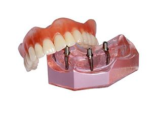 Ball joint implant denture model