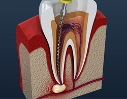 3D model of a root canal procedure