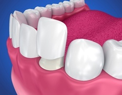 model of porcelain veneers being placed over teeth