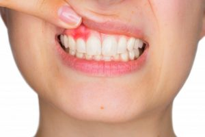 woman with pink spot on gums